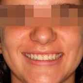ortodoncia para mejorar la inclinación de los dientes