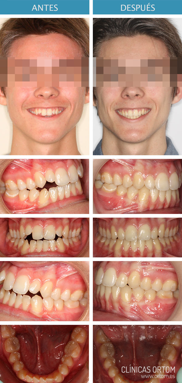 ortodoncia terapia miofuncional