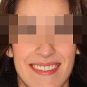 caso ortodoncia cirugia mandibula maxilar
