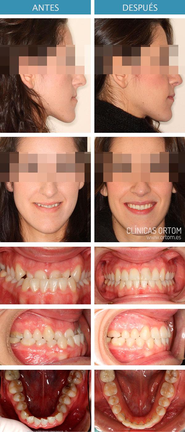 ortodoncia cirugia mandibula maxilar