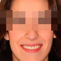 Ortodoncia y Cirugía para mandíbula y maxilar