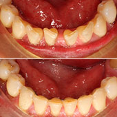 caso brackets damon y periodoncia