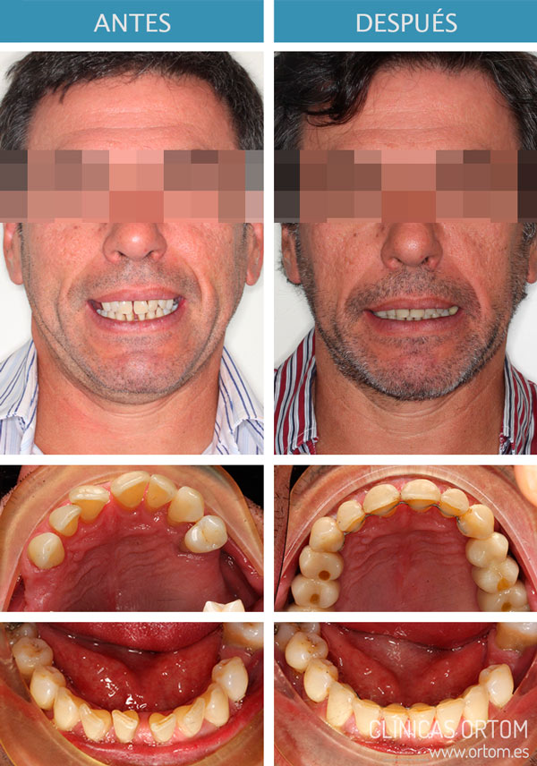brackets damon y periodoncia