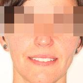 sonreir-ortodoncia-invisalign