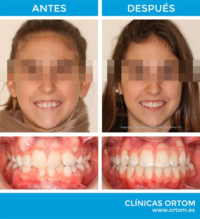 agenesia y ortodoncia