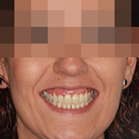 Ortodoncia Adultos: Nuevos avances