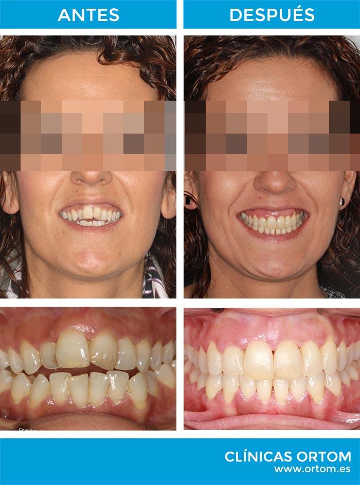 ortodoncia adultos invisalign microtornillos