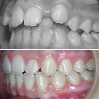 Ortodoncista y paciente