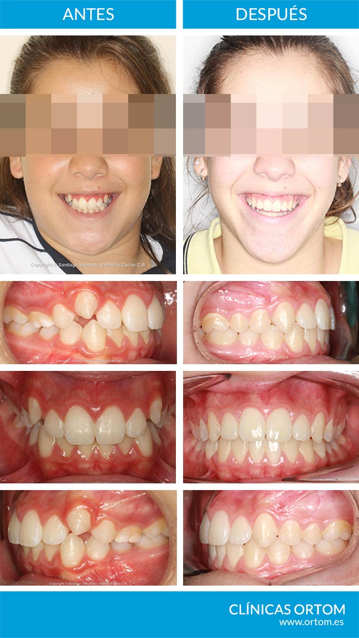 caninos altos ortodoncia