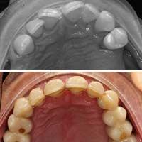 Ortodoncia para dientes separados