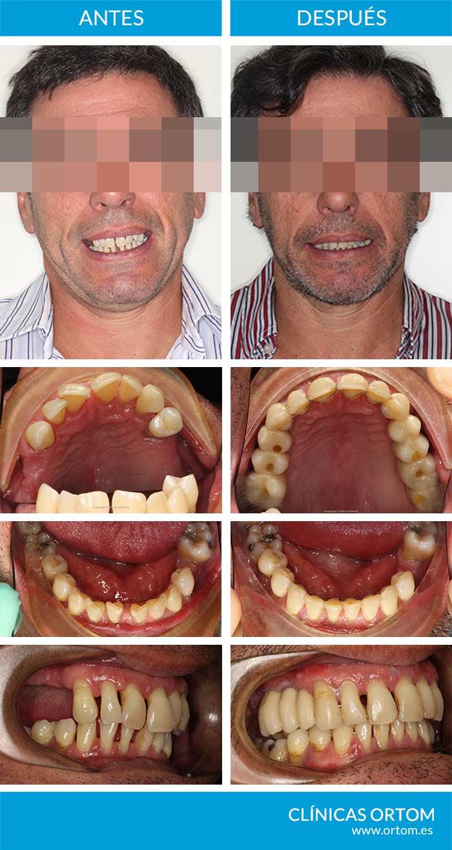 ortodoncia dientes separados damon