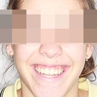 Ortodoncia para caninos altos