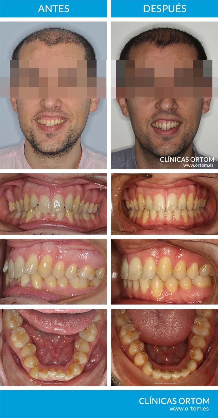 ortodoncia sobremordida y falta de piezas