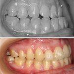 caso cirugia para mandibula