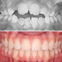 Detección precoz y Ortodoncia