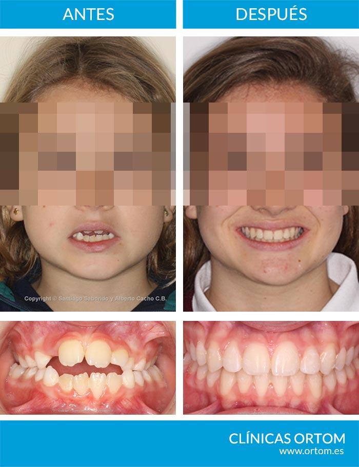 detección precoz ortodoncia