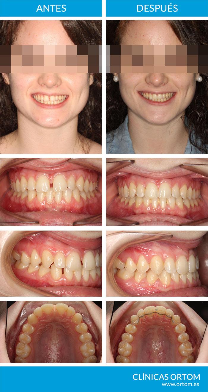 invisalign para diastema y frenillo labial