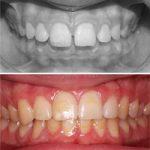 caso de ortodoncia interceptiva para mandíbula pequeña