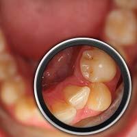 Invisalign para problemas de higiene oral