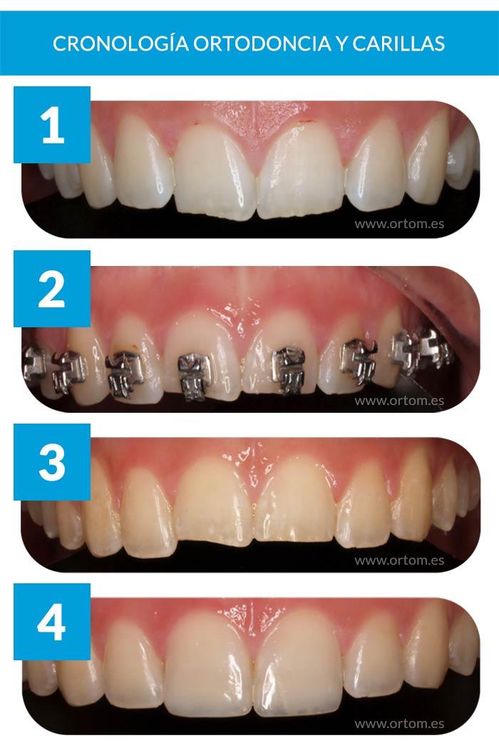 evolución ortodoncia y carillas