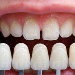Ortodoncia y carillas