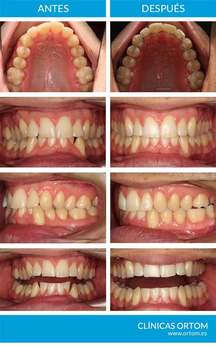 ortodoncia estética invisalign y apiñamiento