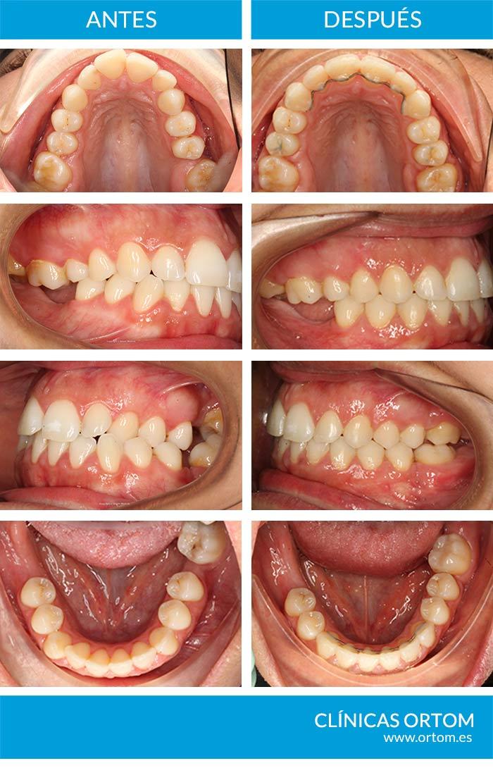 perdida de dientes y ortodoncia
