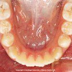 ¿Qué es la protrusión dental?