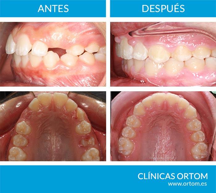 protrusión dental incisiva