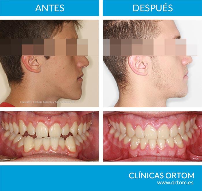 cirugia ortognatica clase III-caso 1