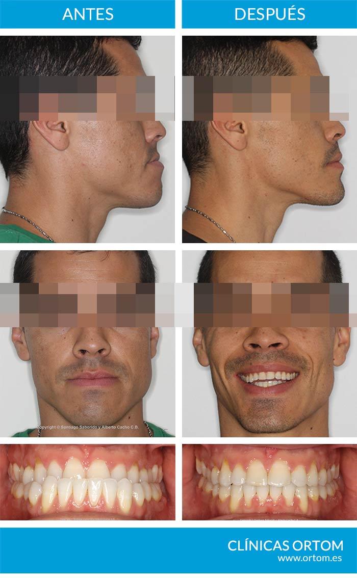cirugía ortognática clase III