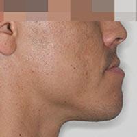 Cirugía ortognática para pacientes de clase III