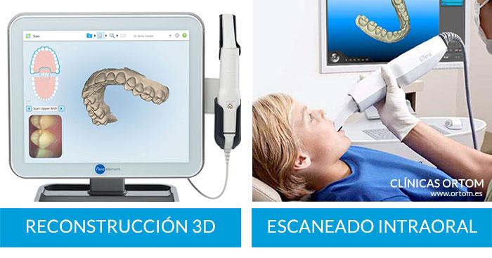 escaner en ortom