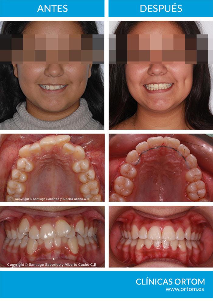 extracciones ortodoncia