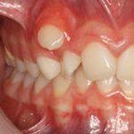 diente Que Sobresale