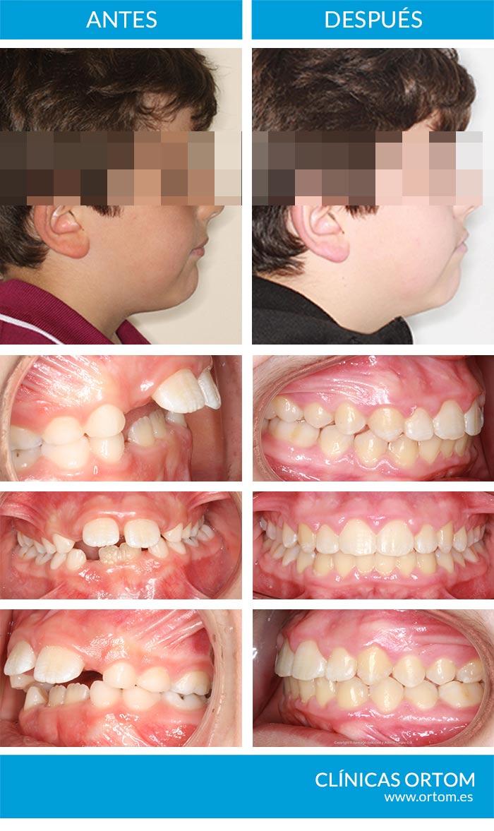 ortodoncia en niños con mandibula pequeña