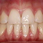 ¿Es importante la retención en Ortodoncia?