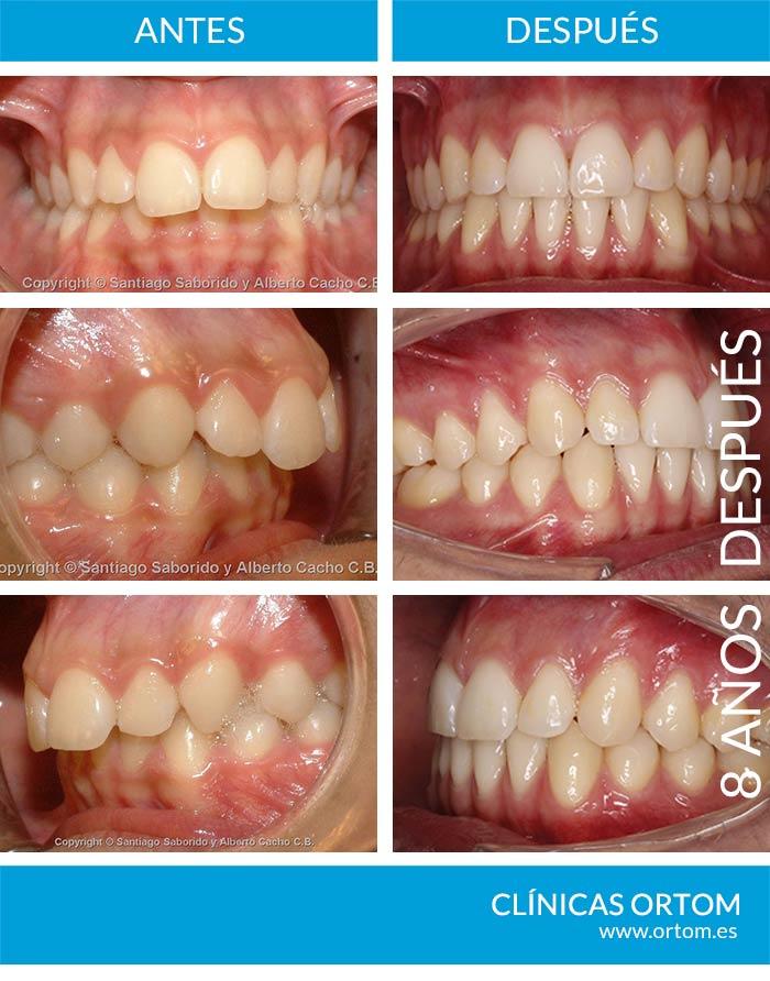 importancia retencion ortodoncia
