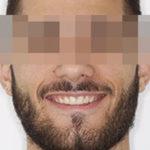 caso dientes superiores pequeños