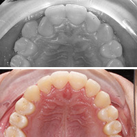 Ortodoncia para mordida cruzada posterior