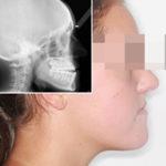 caso de ortodoncia y cirugía maxilofacial