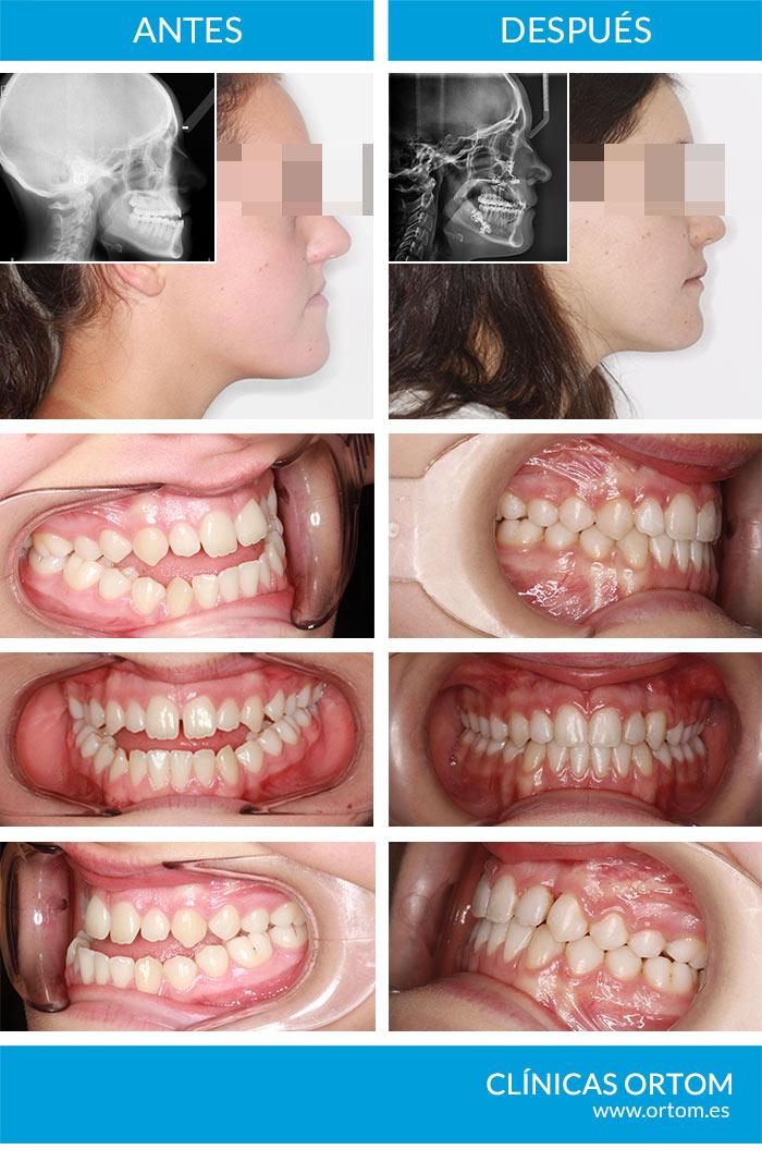 cirugía maxilofacial y ortodoncia
