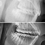 caso ortodoncia para sobremordida