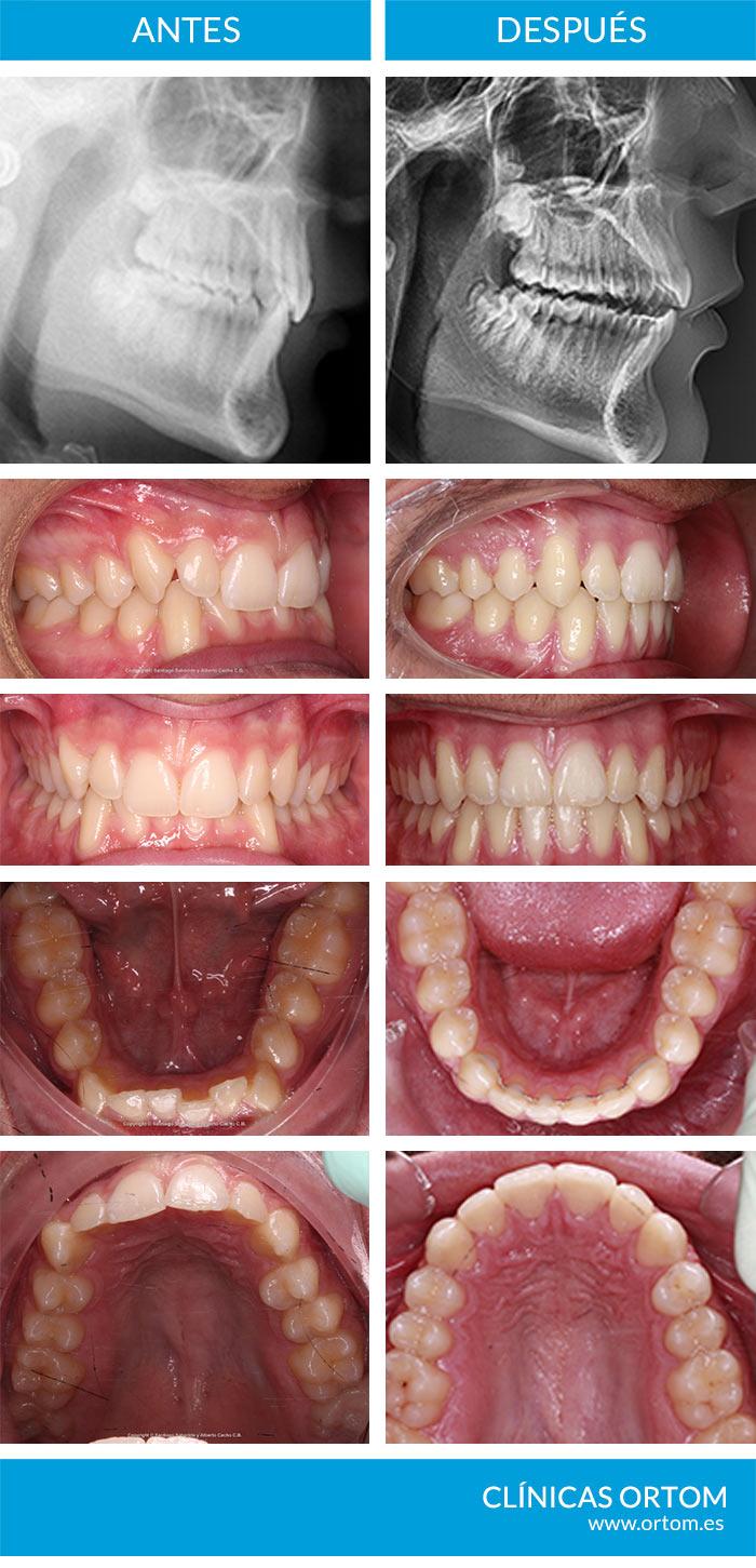 ortodoncia para sobremordida
