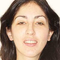 Testimonio de Ortodoncia para apiñamiento y mordida abierta