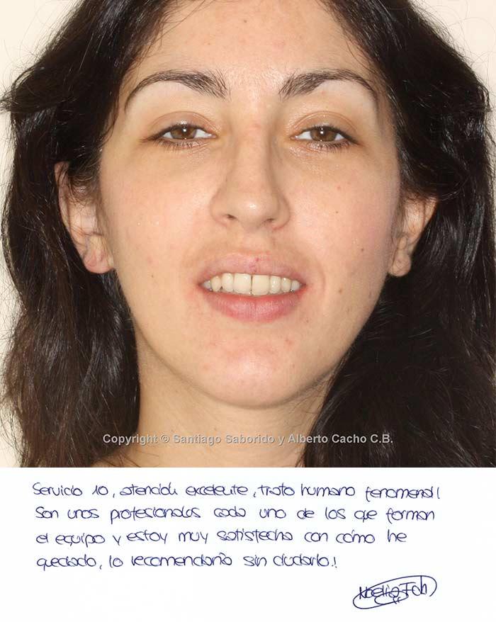 testimonio de ortodoncia apinamiento mordida abierta
