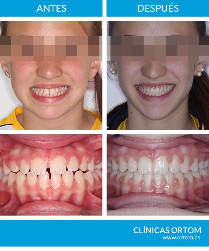 caso ortodoncia diastemas