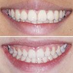 dificultades ortodoncista casos