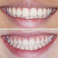 Dificultades para el Ortodoncista