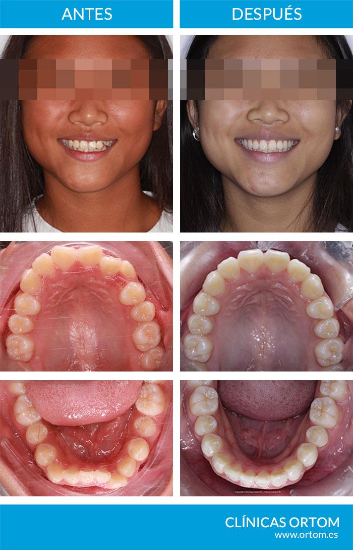 dificultades ortodoncista